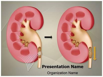 Nephrolithiasis kidney stones powerpoint template background 1g toneelgroepblik Gallery