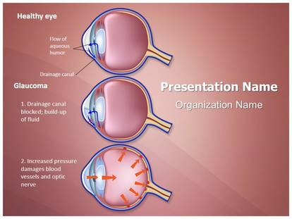 Ophthalmologist glaucoma stages powerpoint template background 1g toneelgroepblik Image collections