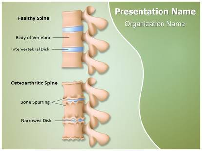 Osteoarthritis osteoarthritic spine powerpoint template background 1g toneelgroepblik Image collections