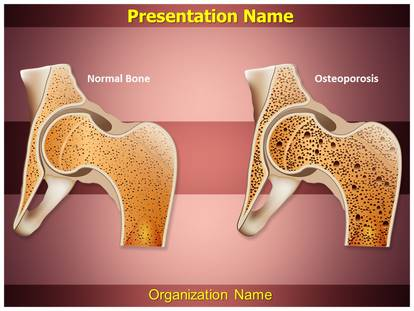 osteopathy osteoporosis powerpoint template background, Modern powerpoint