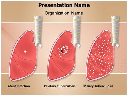 Tuberculosis types powerpoint template background 1g toneelgroepblik Image collections